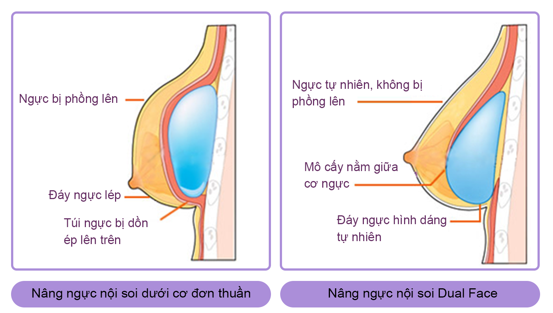 Khác biệt nâng ngực nội soi thường và nội soi Dual Face