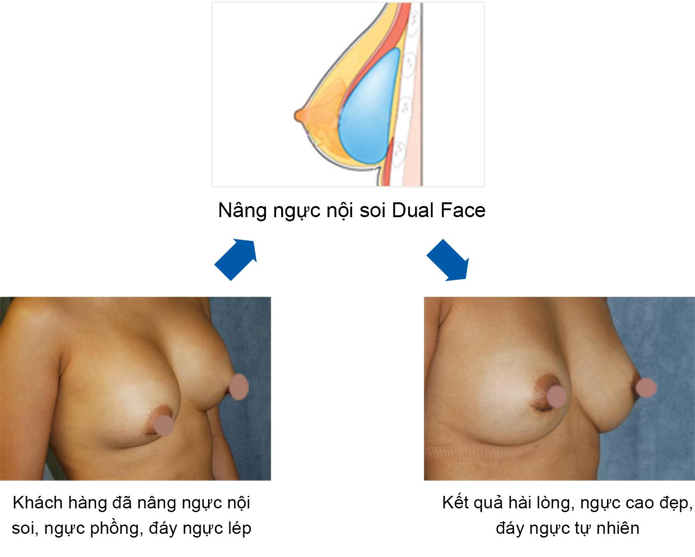 Kết quả nâng ngực nội soi