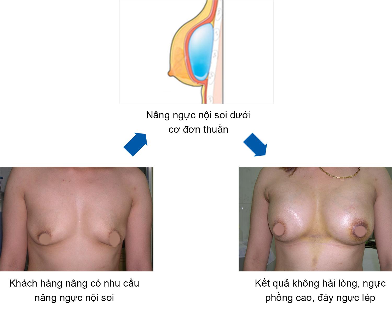 Kết quả nâng ngực nội soi thường