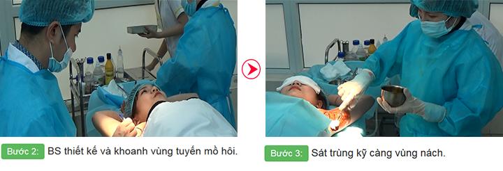 Quy trình chữa trị hôi nách bước 2 và bước 3 tại Hà Thanh