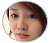 Thu Hà đánh giá về dịch vụ bấm mí Hàn Quốc tại thẩm mỹ Hà Thanh