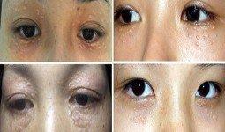 Cách chữa và điều trị mụn thịt quanh mắt