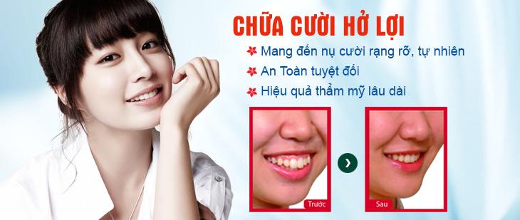 Phương pháp chữa cười hở lợi tối ưu nhất 1
