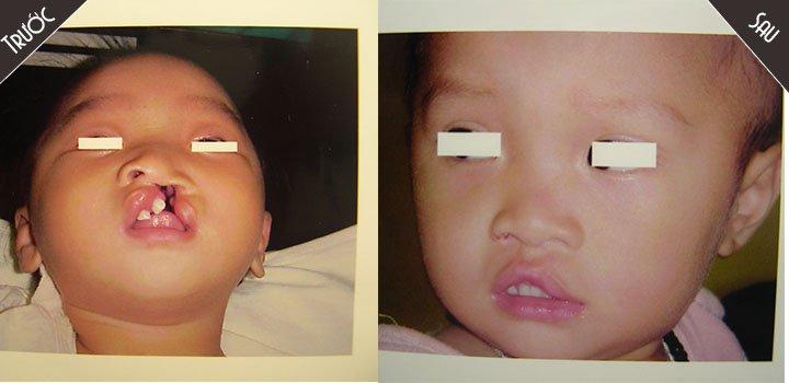 Bác sĩ Nguyễn Chí Thanh phẫu thuật nhân đạo cho trẻ em dị tật bẩm sinh