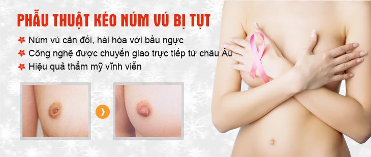 Kéo núm vú bị tụt an toàn tại Hà Thanh