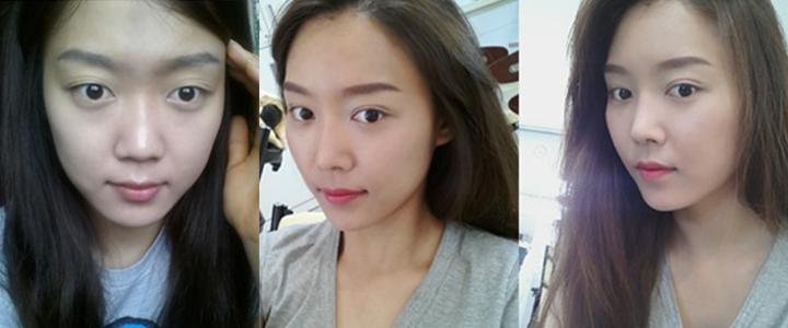 Khánh Hà nâng mũi bằng sự tự thân tại Thẩm mỹ bs Hà Thanh