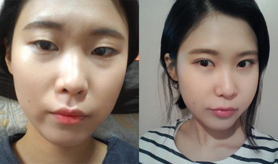 Linh Nga trước và sau khi bấm mí mắt tại Hà Thanh