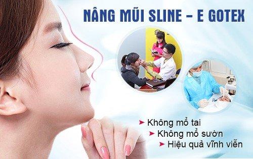 Nâng mũi an toàn uy tín tại Hà Nội