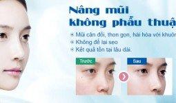 Nâng mũi không phẫu thuật khắc phục mũi hếch
