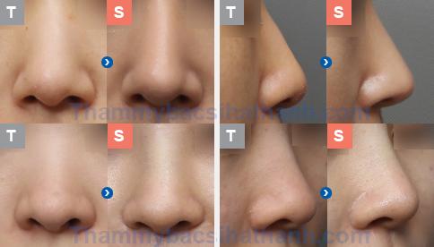 Hình ảnh trước - sau sau phẫu thuật thu nhỏ gọn đầu mũi