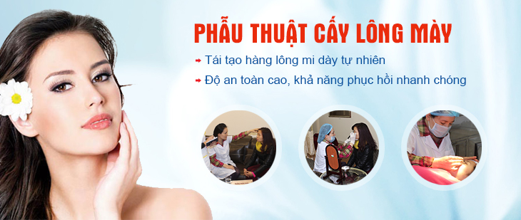 phau-thuat-cay-long-may