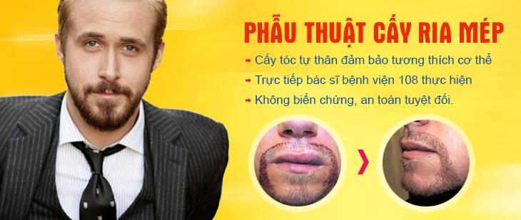 phau-thuat-cay-ria-mep