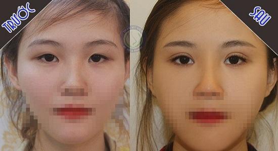 Phương Thảo trước và sau bấm mắt 2 mí Hàn Quốc tại Hà Thanh