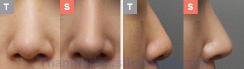 Kết quả sau khi thực hiện thu gọn cánh mũi