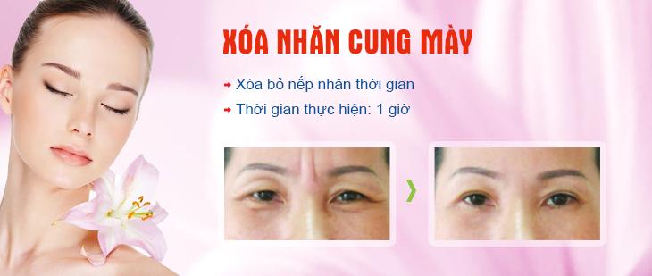 xoa-nhan-cung-may