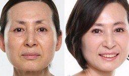 Căng da mặt không phẫu thuật bằng chỉ