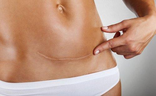 Sẹo lồi sau khi mổ sinh điều trị thế nào