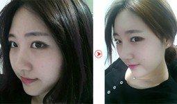 Thanh Nhã trước và sau khi cắt cánh mũi