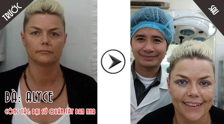 Bác sĩ Nguyễn Chí Thanh cắt mí mắt cho bà Alyce