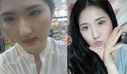 Khách hàng Thanh Hằng trước và sau nâng mũi Hàn Quốc