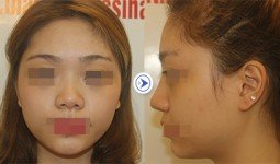 Hình ảnh trước sau nâng mũi bọc sụn của Hồng Minh