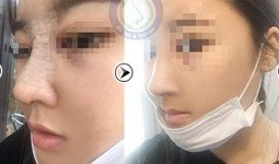 Hình ảnh trước sau khi nâng mũi S line của Quỳnh Dung