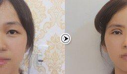 Ảnh trước và sau khi cắt mí mắt của Thúy Duyên