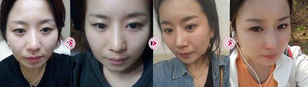 Hà Phương xinh đẹp hơn nhờ bấm mí mắt Hàn Quốc