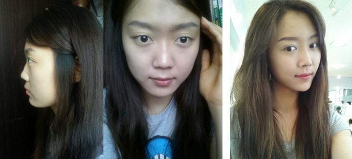 Khánh Hà hình ảnh trước sau khi thực hiện nâng mũi bọc sụn Hàn Quốc