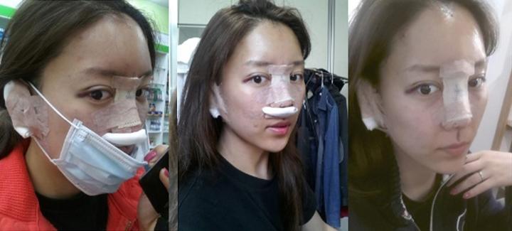 Khánh Hà ngay sau khi nâng mũi bọc sụn Hàn Quốc
