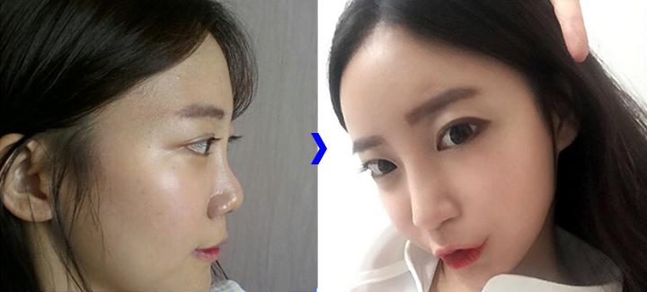 Nhã Anh trước và sau khi nâng mũi bọc sụn tại Hà Thanh