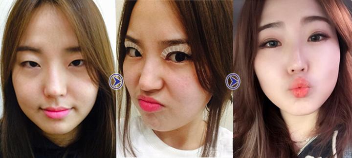 Thu Phương trước và sau khi cắt mí mắt tại Hà Thanh