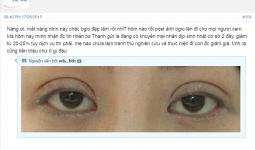 Hình ảnh thực tế của 1 chị em cắt mí mắt tại hà Thanh chia sẻ trên webtretho