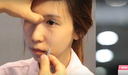 Toàn bộ thay đổi của Minh Lý sau bấm mí mắt Hàn Quốc