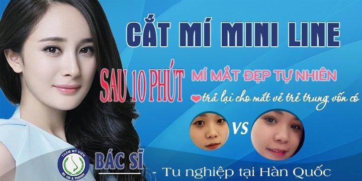 Cắt mí mắt Mini Line Hàn Quốc tại Hà Thanh