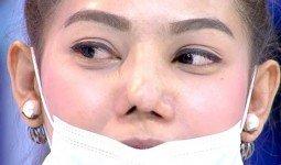 Nguyên nhân dẫn đến mũi hỏng sau khi nâng