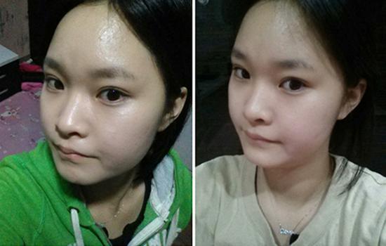 Hoài thu sau 1 tháng bấm mắt 2 mí Hàn Quốc