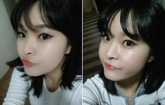 Hoài Thu sau 3 tháng bấm mí mắt Hàn Quốc