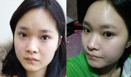 Hoài Thu trước và sau khi bấm mí mắt Hàn Quốc tại Hà Thanh