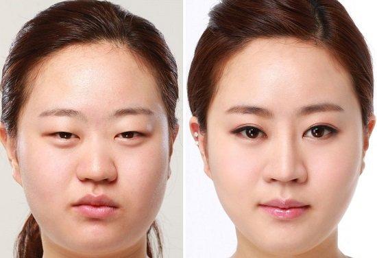 Cách khắc phục sụp mí mắt bẩm sinh