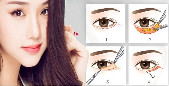 Cắt mí mắt là cách làm mắt 2 mí tròn đẹp tự nhiên