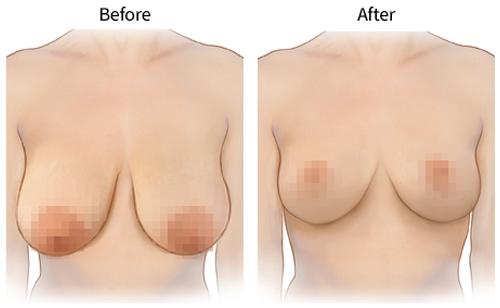 Giải đáp treo ngực sa trễ là gì