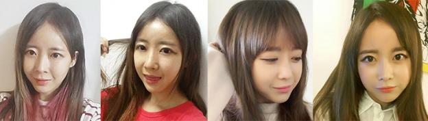 Trước và sau nâng mũi s line của Hoài Thu tại Hà Thanh