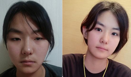 Thanh Huyền trước và sau khi bấm mí mắt Hàn Quốc tại Hà Thanh