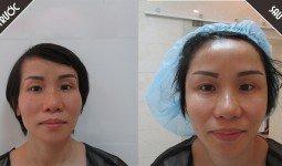 Khách hàng trước và sau khi độn thái dương