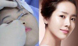 Bấm mí mắt Hàn Quốc ở đâu đẹp