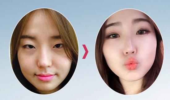 Kết quả cắt mí mắt của khách hàng Thu Phương