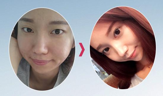 Kết quả cắt mí mắt của khách hàng Bảo Ngọc