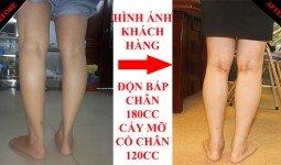 Ảnh khách hàng trước và sau khi độn bắp chân