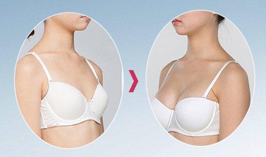 Mỹ Linh trước và sau khi nâng ngực nội soi